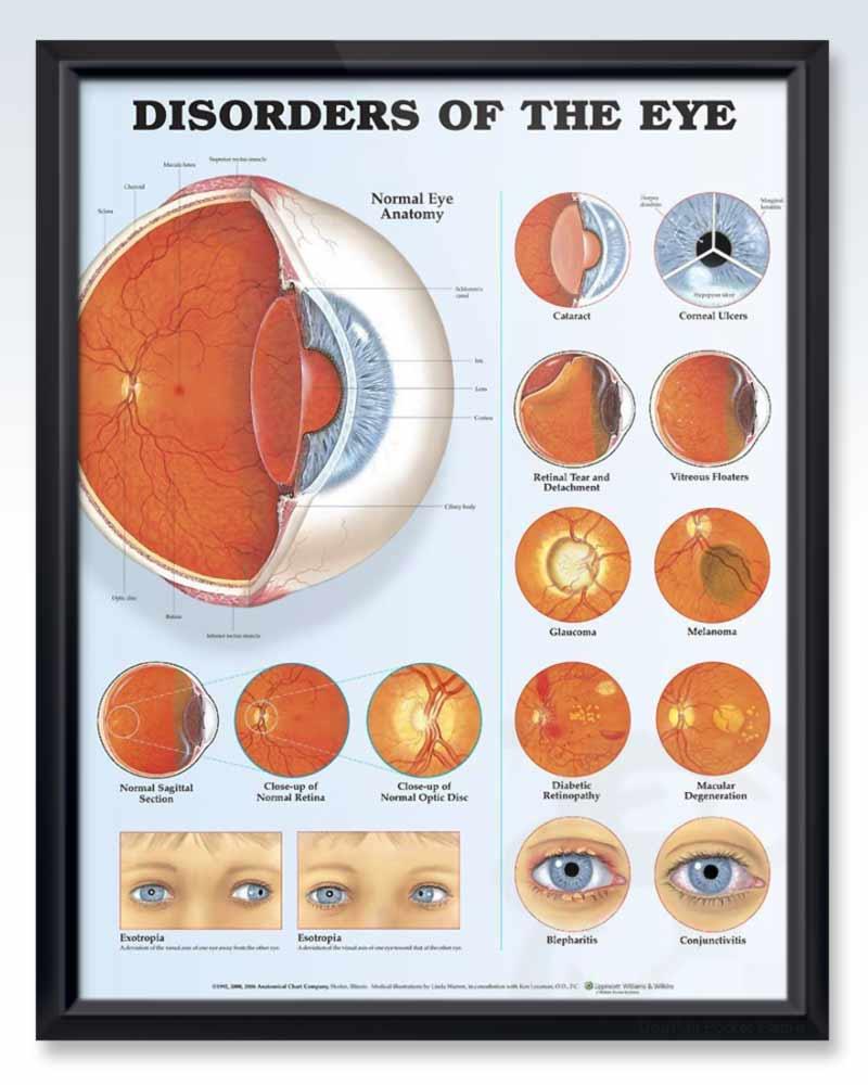 Disorders of the Eye Exam Room Anatomy Poster ...