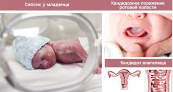 Σεπτέρες σε νεογέννητο