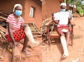 'Police broke my leg for not wearing face mask' - Vihiga woman narrates
