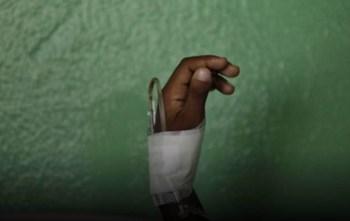 Mombasa health officials issue alert over dengue fever outbreak