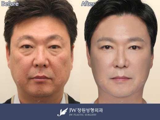 Price for Male Plastic Surgery in Korea: Common Plastic Surgery in Korea  for Men - JW Plastic Surgery