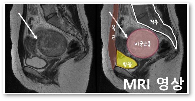 MRI 영상.jpg