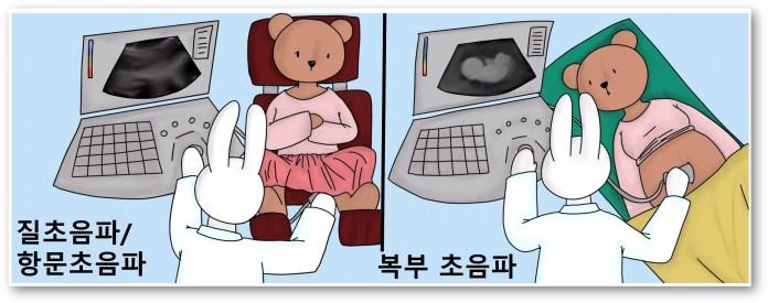 자궁근종 확인 검사 초음파