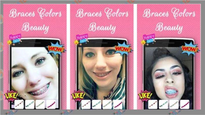 Braces Colors Beauty -Behel Kamera Android