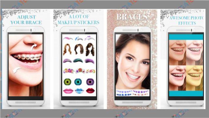 Braces Photo Editor - Beauty editor