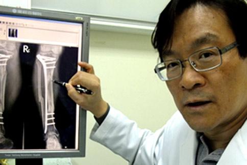 粉碎性骨折也不怕 微創手術滿意度高   王叔昂   骨折外傷   骨科   健康新知   華人健康網