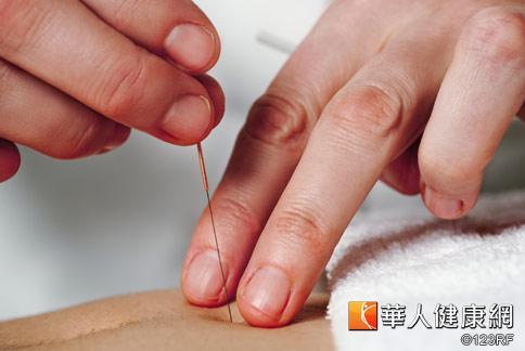 針灸減重是針對個人體質進行調理,中醫師表示,男性腰圍大於90等中廣型身材為主要治療對象。