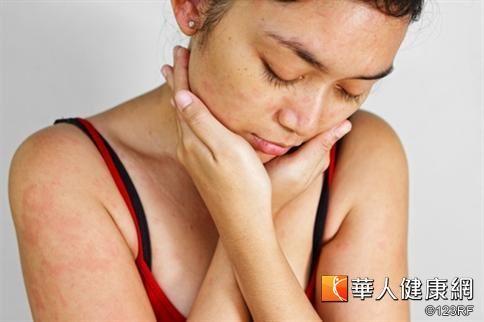 帶狀疱疹是一種由水痘病毒引起的急性皮膚病。