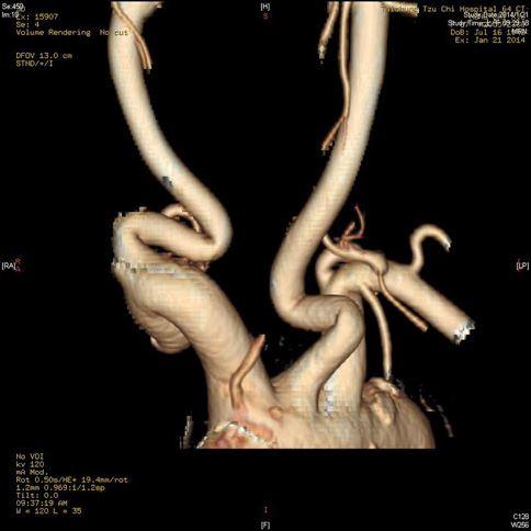 經血管攝影檢查,可清楚看到左邊的的右側頸動脈出現兩個180度的大轉彎。(圖片提供/台中慈濟醫院)