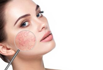 Rosacea-Specific Skincare : Laboratoire Dr Renaud1
