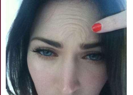 Megan Fox vs. Botox