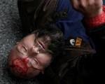 Máu đã đổ ở Catalonia, gần 800 người bị thương