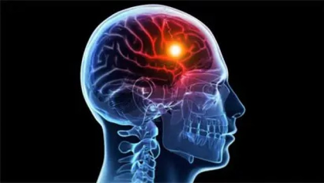 Image result wey dey for Stroke : 100,000 Nigerians Affected Yearly - - NSO
