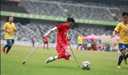 one-legged footballer