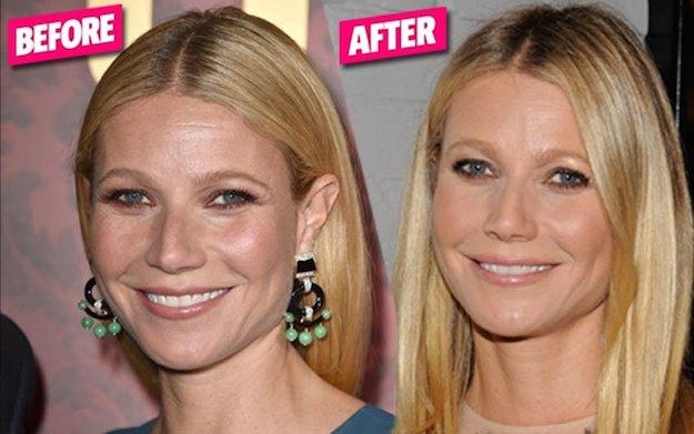 Plastic Hudson Surgery Had Jennifer
