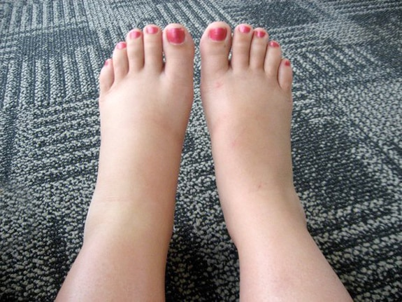 Swollen feet or ankles