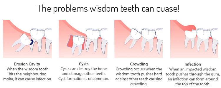 Mencabut Gigi Geraham Bungsu- Global Estetik Dental Care