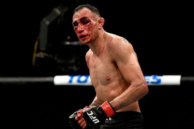 Tony Ferguson suffered broken orbital bone in TKO loss to Justin ...
