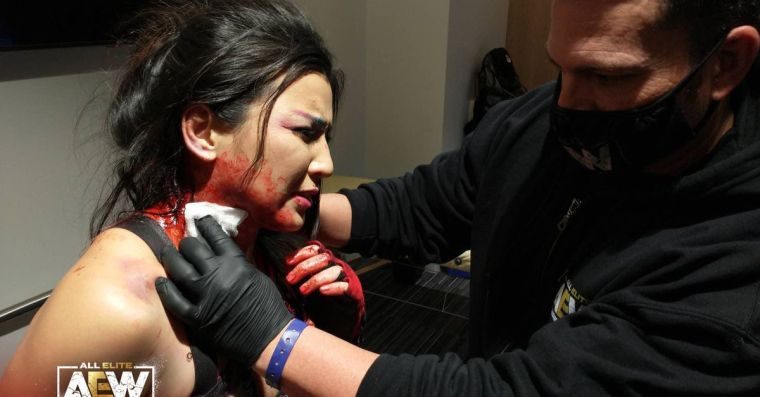 I'm worried that Hikaru Shida is turning into a zombie after being bitten by Abadon