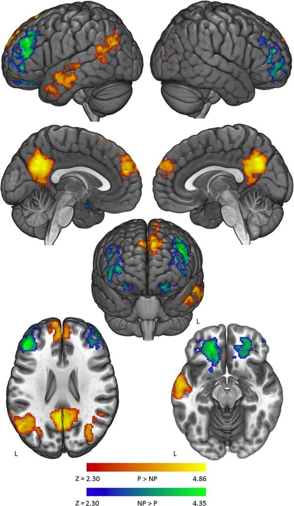 A new brain study sheds light on why it can be so hard to ...