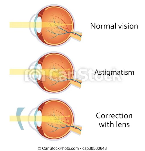 Astigmatism corrected by a cylindrical lens. eyesight ...