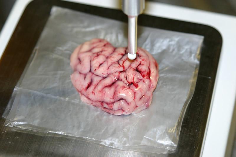 Diseñan bisturí inteligente que localiza tumores cancerígenos en el cerebro - bisturi-inteligente-que-extrae-tumores-del-cerebro