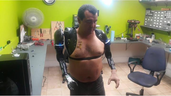 Emprendedor Mexicano produce Prótesis con Impresión 3D Stratasys - protesis1