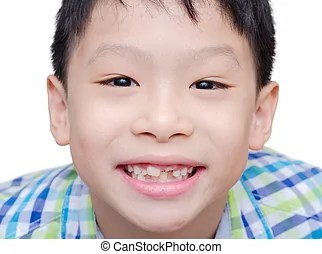 boy toothless smile close-up,new teeth rising - Happy Asian...