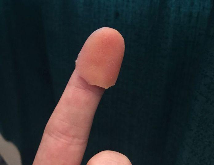 CITER fingerprint mold