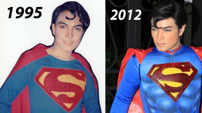 El antes y después de Herbert Chavez