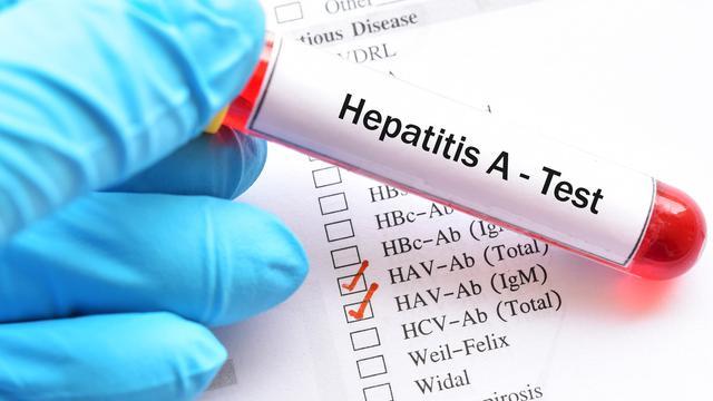5 Fakta Hepatitis A, Penyakit yang Sedang Mewabah di Pacitan