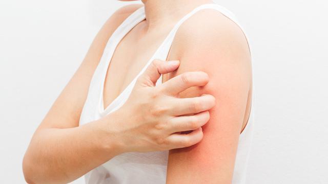 Hasil gambar untuk Penyakit Kulit Berbahaya