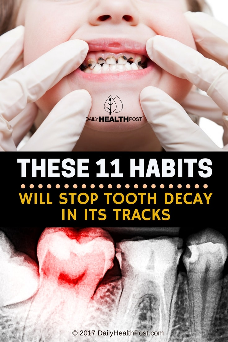 How To Stop Tooth Decay With These 11 Tooth Healthy Habits