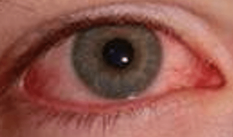 Can Herpes Make You Go Blind?  2
