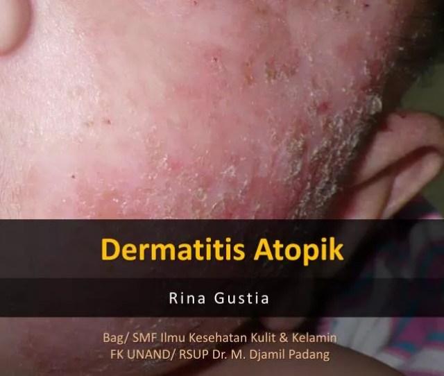 Dermatitis Atopik N