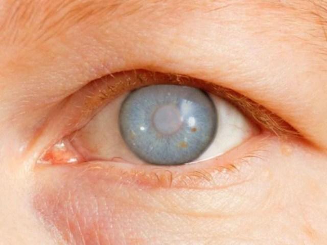 IMSS otorga más de 600 mil consultas por glaucoma