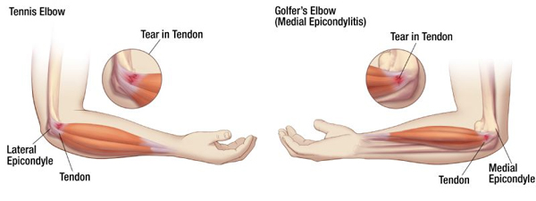 Tennis Elbow and Golfer's Elbow - What's the Difference ...