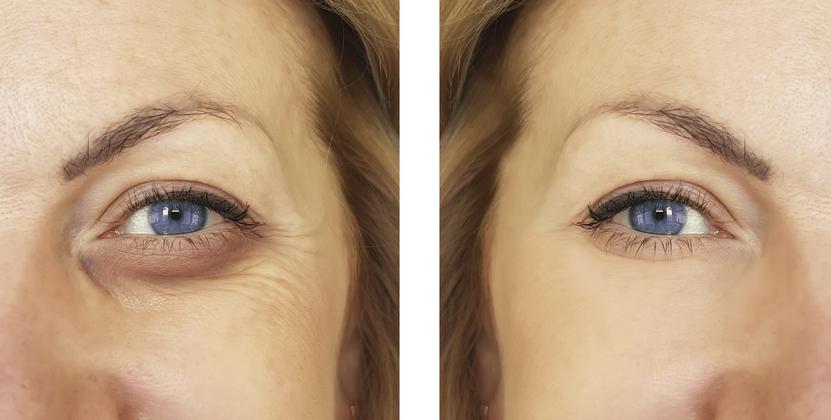 botox para eliminar ojeras