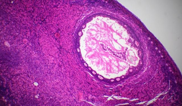 qué son los quistes en los ovarios, quistes en los ovarios síntomas, peligros de los quistes en los ovarios, sintomas de quistes en los ovarios o matriz, tratamiento para quistes en los ovarios, porque salen los quistes en los ovarios, quistes en los ovar
