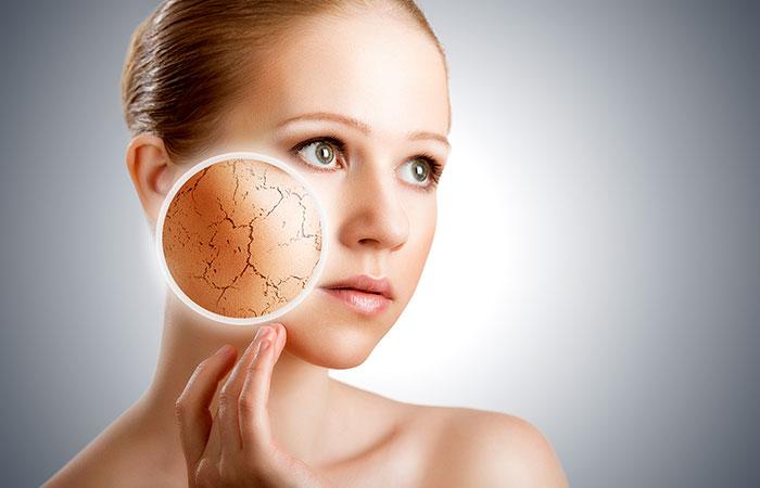 24. Tratamento da pele seca