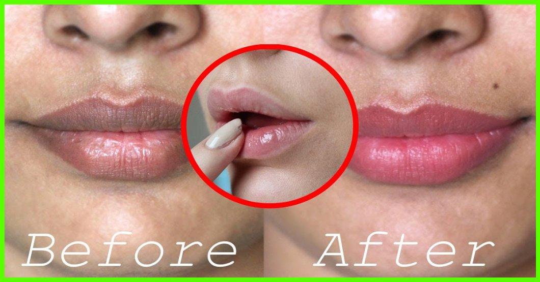Black Spot On Lower Lip Cancer   Julakutuhy co