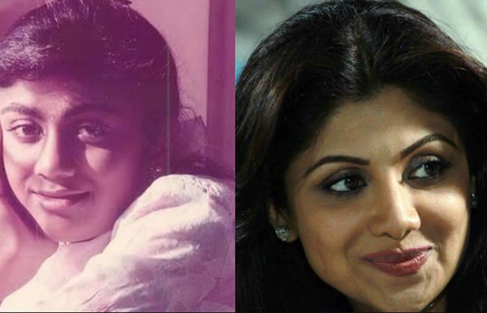 Bollywood Actress Shilpa Shetty Before And After Nose Job