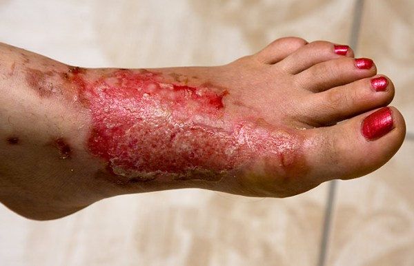 Heals Wounds, Burns, And Acne
