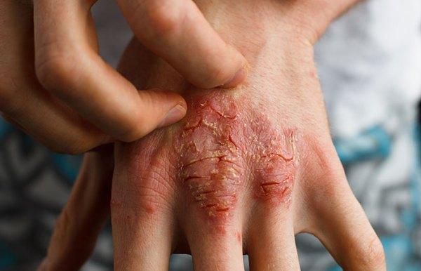 Reduces Eczema