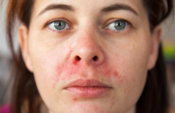 Treats All Varieties Of Dermatitis