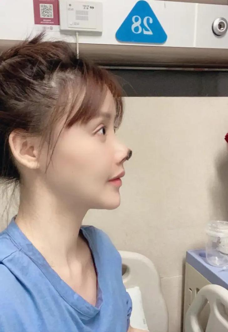 actriz china nariz cirugia0001 - Actriz sufrió una infección en su nariz luego de una cirugía que salió mal. La punta se tornó negra