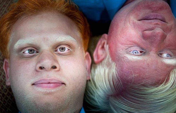 """silviaalessi skinproject albinismo005 - 14 fotografías de """"Skin Project"""": Una serie de retratos de albinos y mujeres quemadas con ácido"""