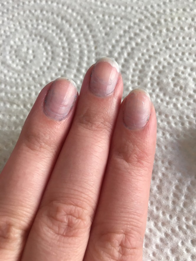 Here S How I Successfully Rehabbed My Nails After An Acrylic Manicure Allure