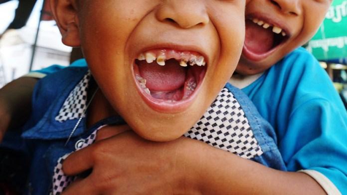 Resultado de imagen para extraen 526 dientes de la boca