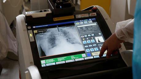 Hallan con una tomografía signos de coronavirus en los pulmones de una joven sana y sin síntomas